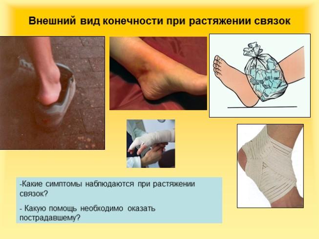 Первая помощь при растяжении связок суставов сустав как специфическая разновидность области